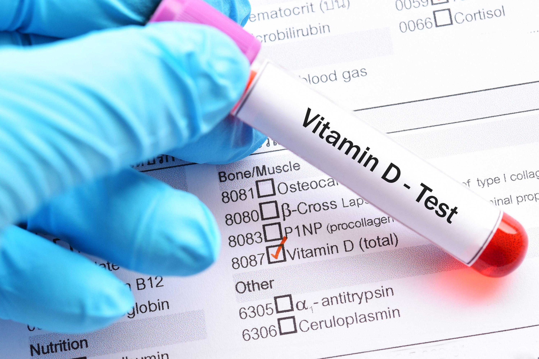 Vitamin D test sample